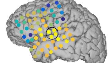 debunking myths surrounding epilepsy